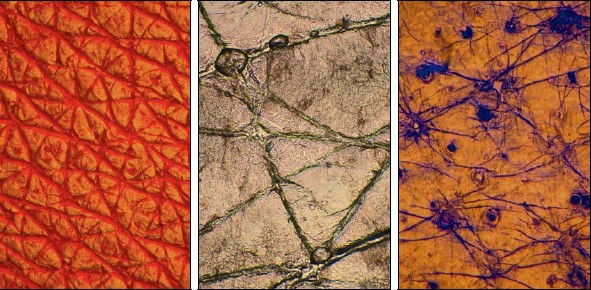 "Figs:1a, 1b, 1c. ""Skin Topography."" Micrographs of magnified skin surfaces. Photo © Zane Berzina"